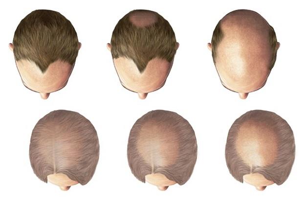 почему мужчины лысеют